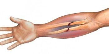 Эффективное лечение замедленной консолидации кости